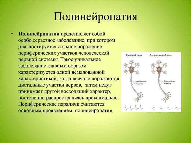 Лечение полинейропатии народными средствами