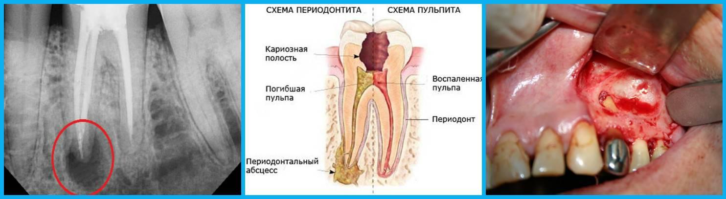 Лечение пульпита зуба народными средствами в домашних условиях