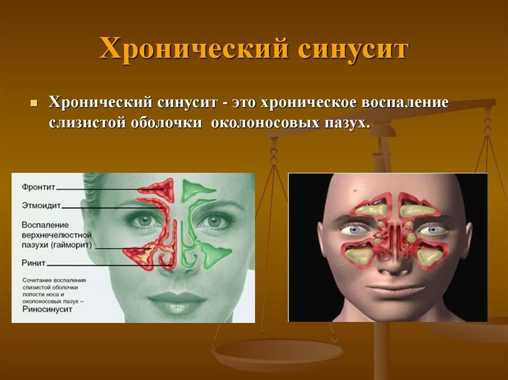 Что такое синусит симптомы и лечение у взрослых народными средствами