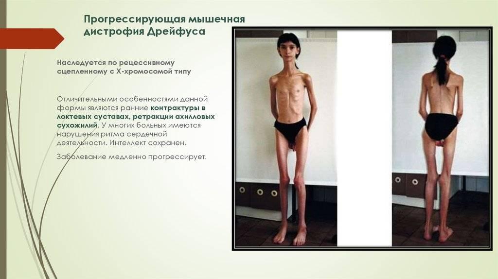 Спинальная мышечная атрофия у детей