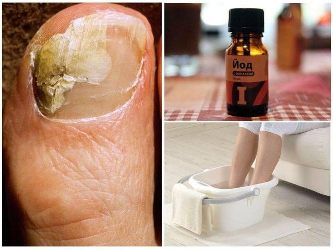 Начальная стадия грибка ногтей на ногах и на руках: фото и лечение