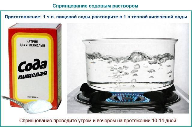 Зуд при молочнице: как избавиться, чем снять, как уменьшить, крема, мази
