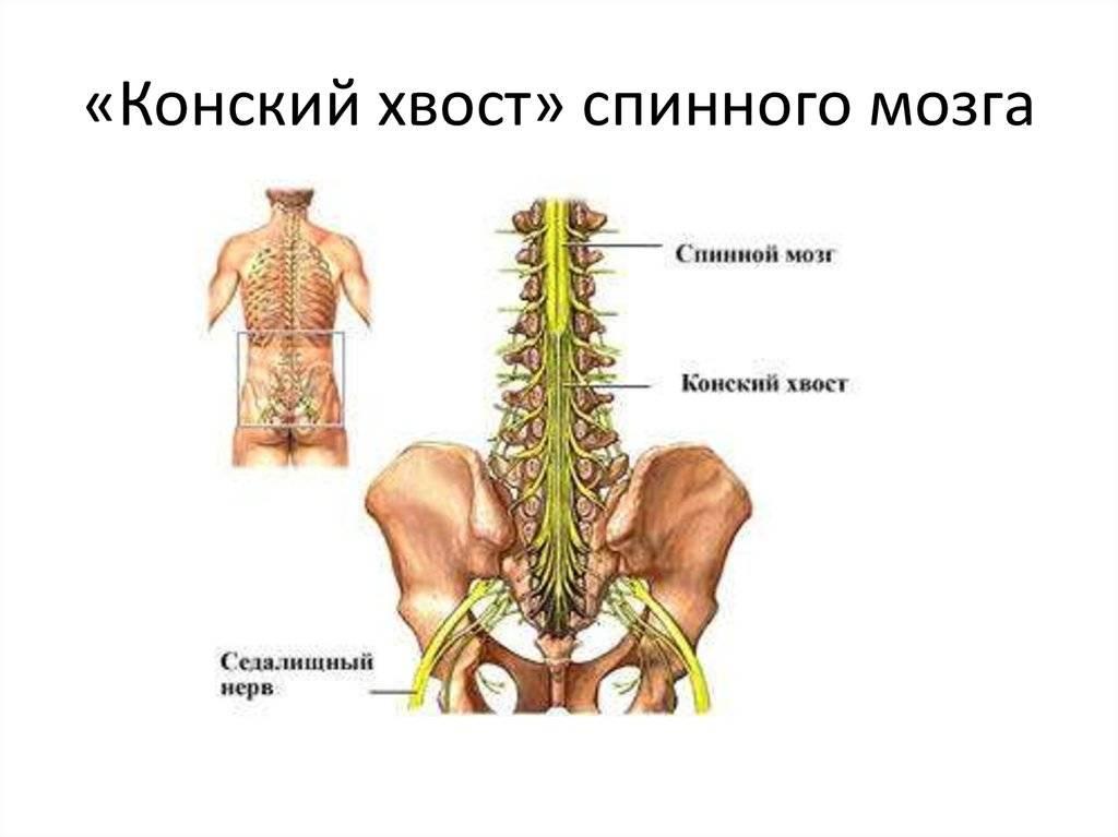Позвоночник конский хвост опухоль