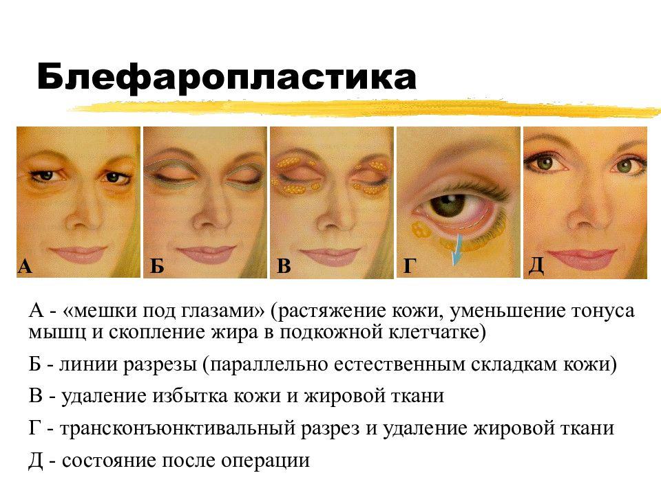 """Отеки под глазами по утрам: причины, лечение - """"здоровое око"""""""