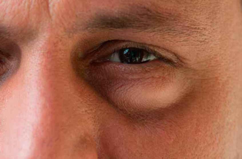 Отеки под глазами по утрам: причины, диагностика, лечение