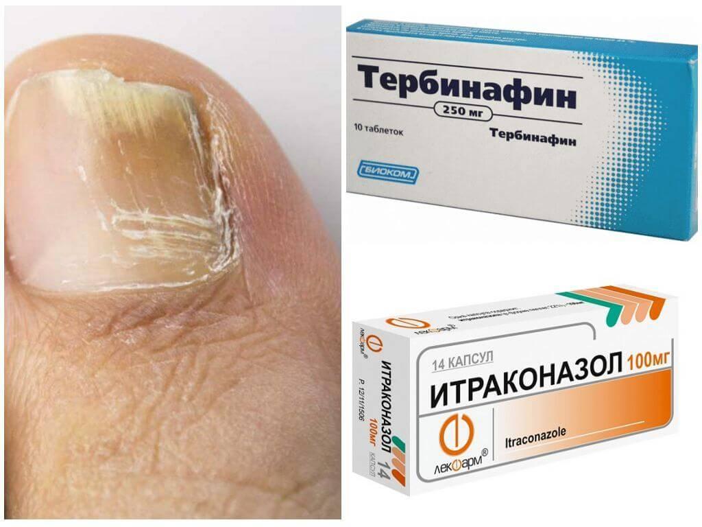 Как быстро вылечить грибок ногтей на ногах - рецептами народной медицины и лекарственными препаратами