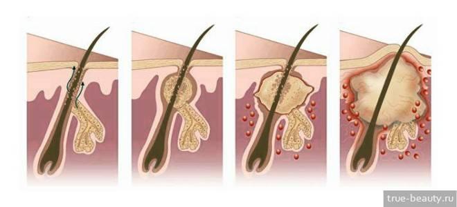 Лечение чирея под мышкой