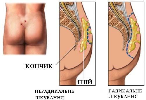 Лечение эпителиального копчикового хода без операции | атлантик