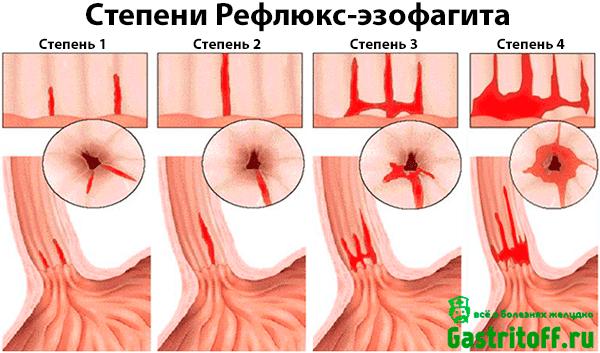 Рефлюкс-эзофагит (гастроэзофагеальная рефлюксная болезнь, гэрб)