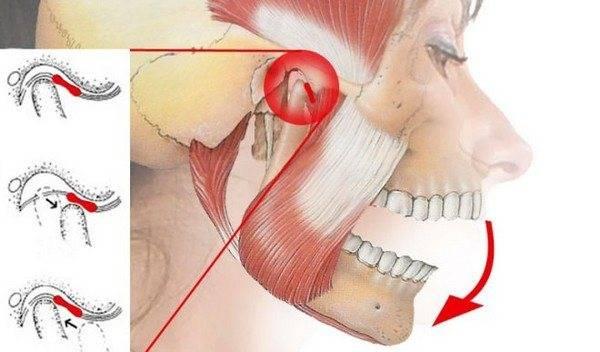 Причины симптома когда болят скулы на лице: подразделение лицевой боли, диагностика и лечение