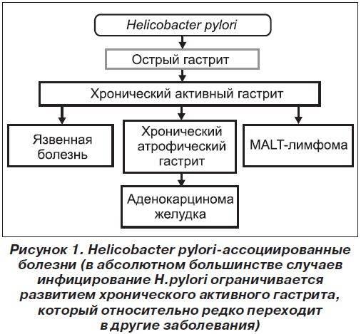 Аутоиммунный гастрит симптомы и лечение