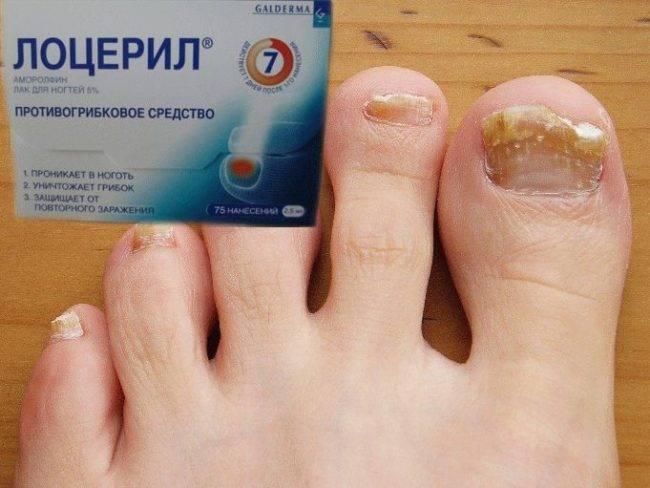 Чем лечить грибок ногтей на ногах: лучшие препараты и народные средства
