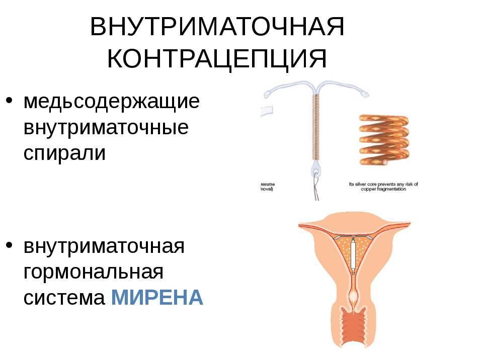 Виды внутриматочных спиралей: формы, состав и цены