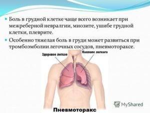 Боль в грудной клетке справа при вдохе: причины, лечение pulmono.ru боль в грудной клетке справа при вдохе: причины, лечение