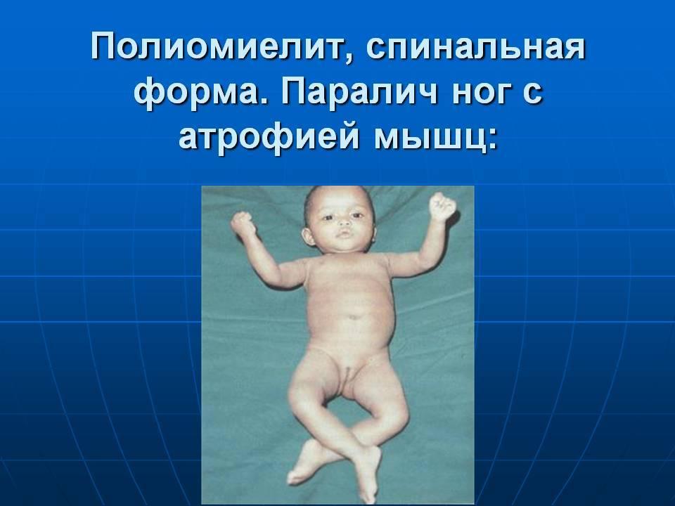 Спинальная мышечная атрофия (сма)   справка.неинвалид.ru