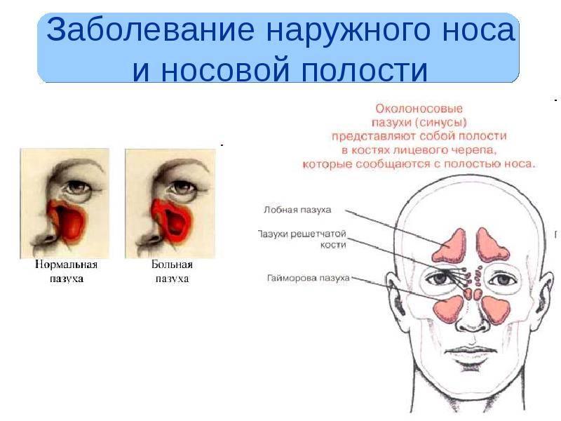 Двухсторонний катаральный гайморит: симптомы и лечение верхнечелюстных пазух