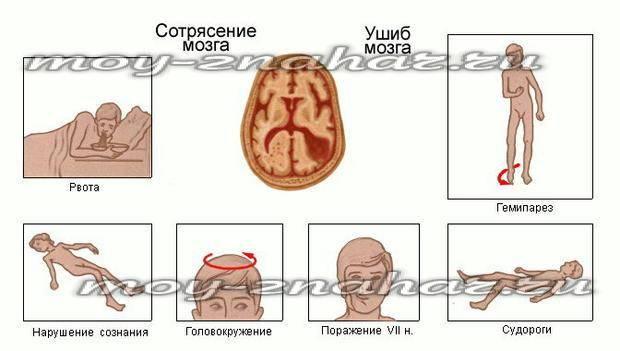Признаки сотрясения мозга уребенка ичем грозит несвоевременная помощь