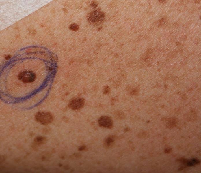 Пятна на спине: фото, возможные заболевания, симптомы