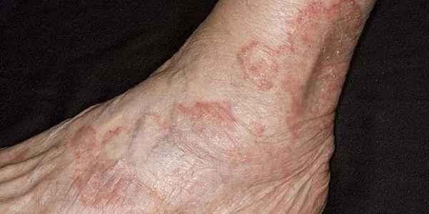 Лечение экземы на ногах народными средствами: эффективные рецепты, полезные рекомендации - folkremedy.ru