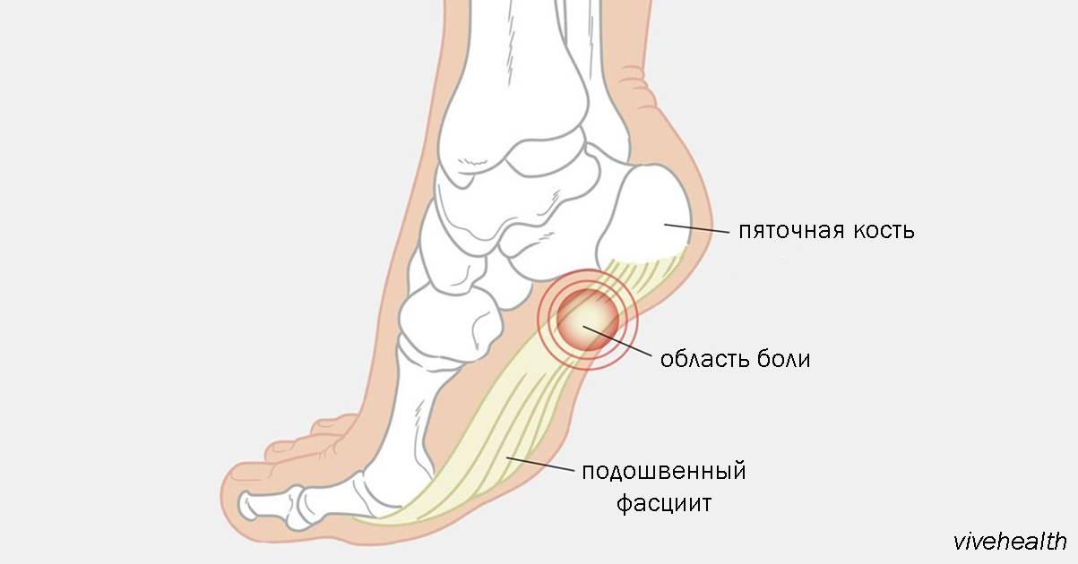 Болит пятка, больно наступать, как лечить  | народные знания от кравченко анатолия