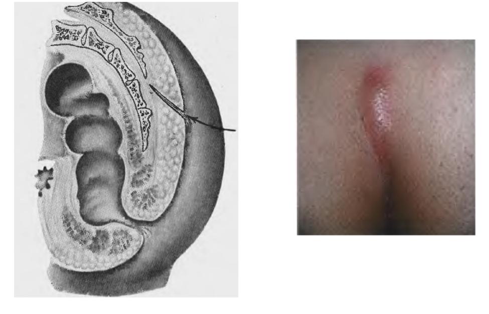 Эпителиальный копчиковый ход. лечение воспаления и операция удаления копчикового хода.