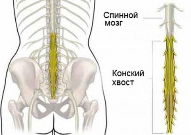 Синдром конского хвоста, как лечить конский хвост спинного мозга?