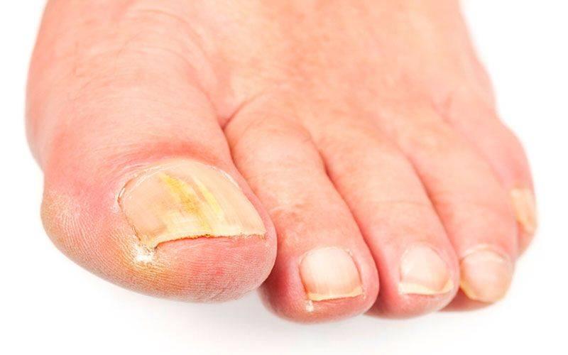 Быстрое лечение грибка на ногах в домашних условиях.  методы