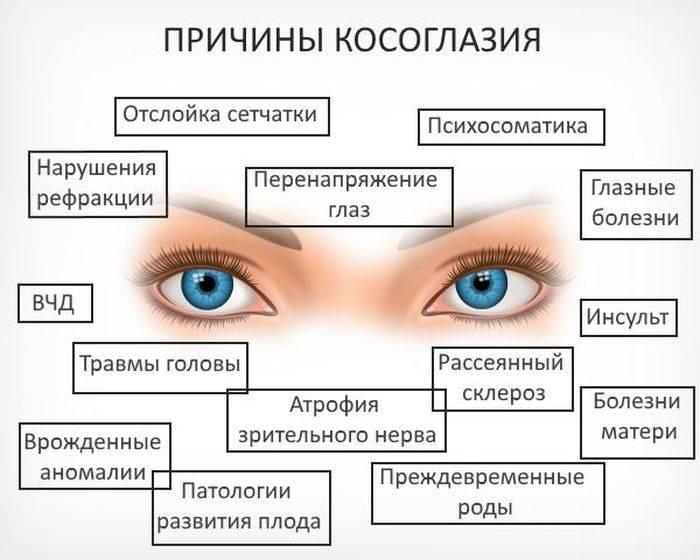 Расходящееся косоглазие (страбизм) у взрослых: причины и лечение