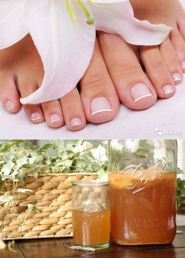 Начальная стадия грибка ногтей на руках и ногах: фото