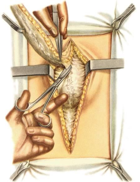 Свищ на копчике причины возикновения, симптомы и лечение