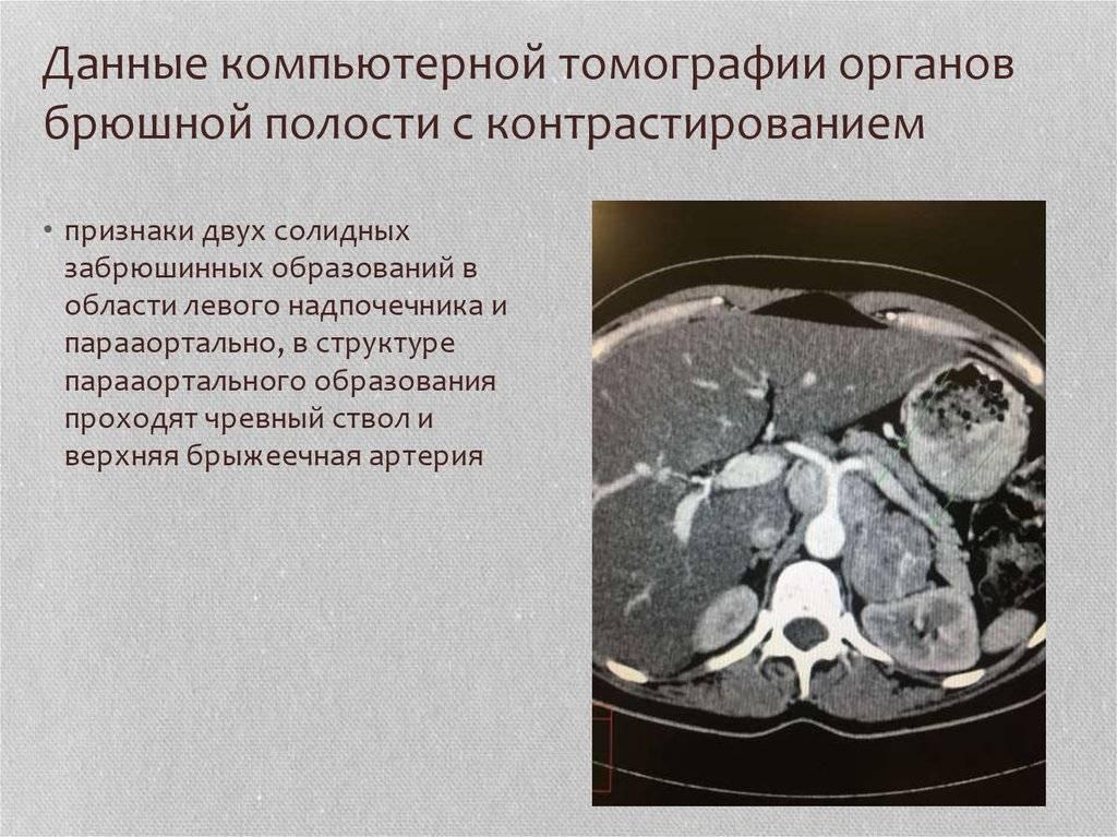 Кт брюшной полости: подготовка и что показывает исследование