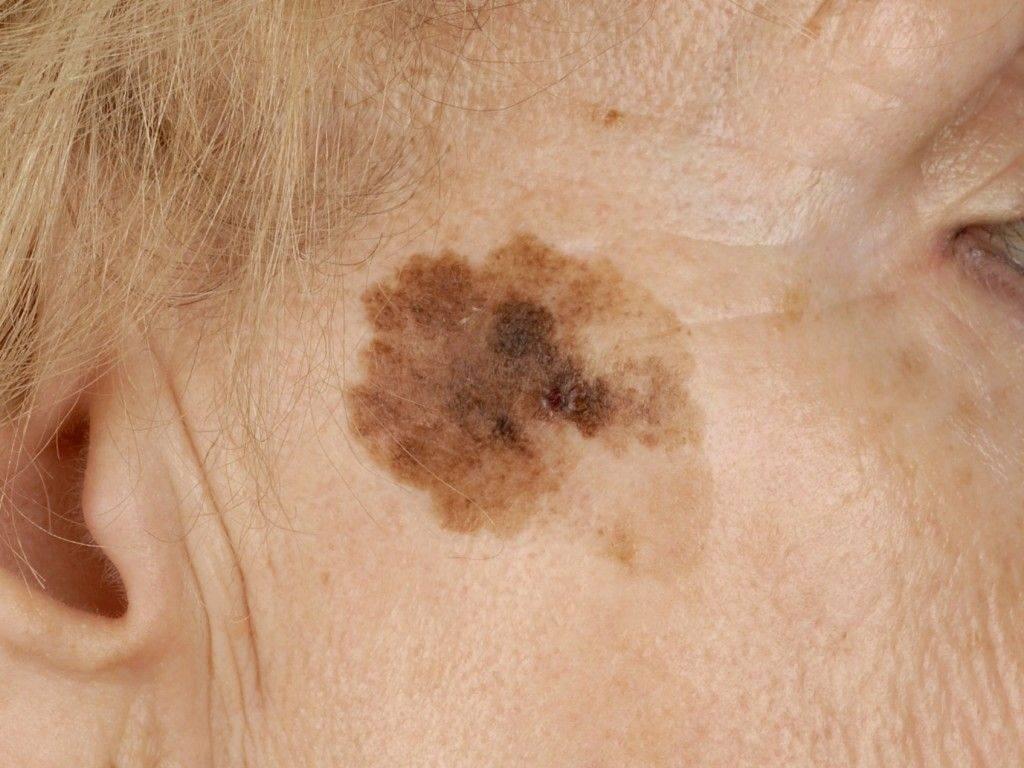 Пятна на коже с красным ободком: фото, причины, лечение