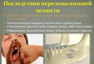 Сводит мышцы лица причины. сводит скулы во время зевания. спазм и боль вследствие травмы