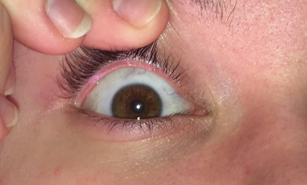 Прыщи на веках глаз: виды, причины и симптомы
