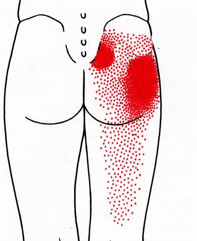 Простатит боли в ягодице долго ли лечиться от простатита