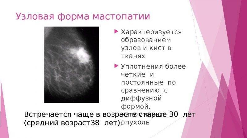 Мастит у кормящей мамы: симптомы и лечение, фото