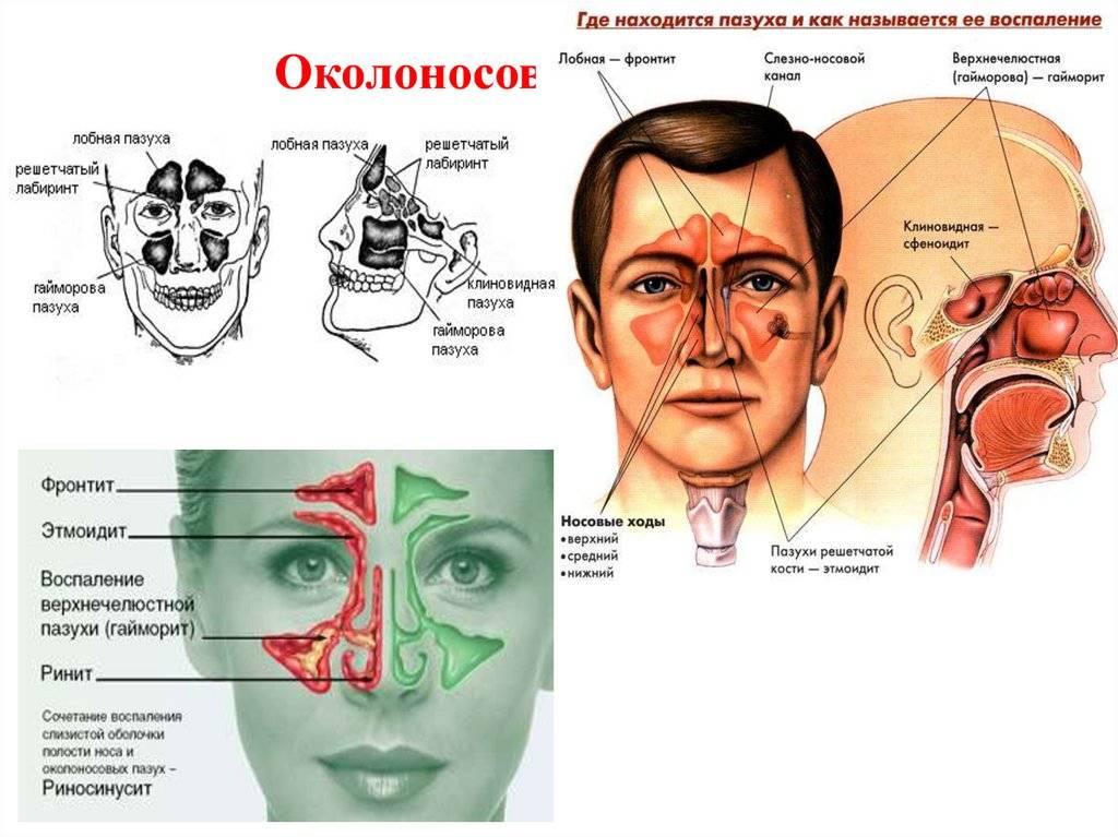 Пазухи носа, их анатомия и лечение пазухи носа, их анатомия и лечение