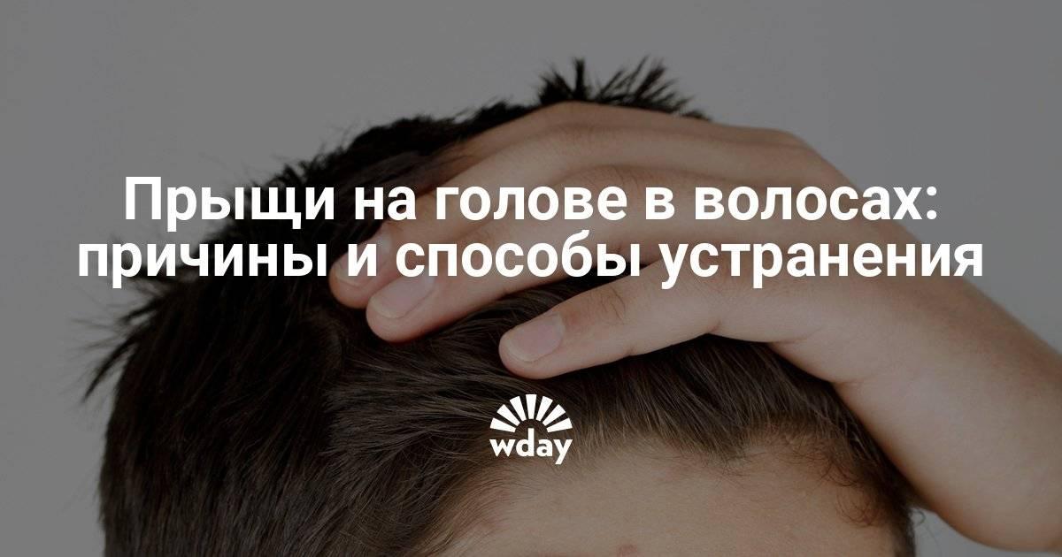 Прыщи на голове в волосах - причины появления, способы лечения