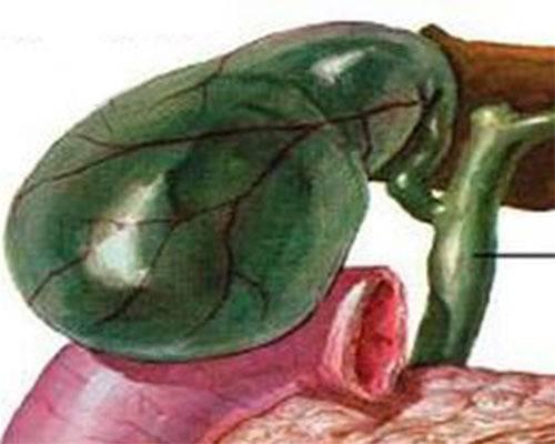 Как лечить перегиб желчного пузыря