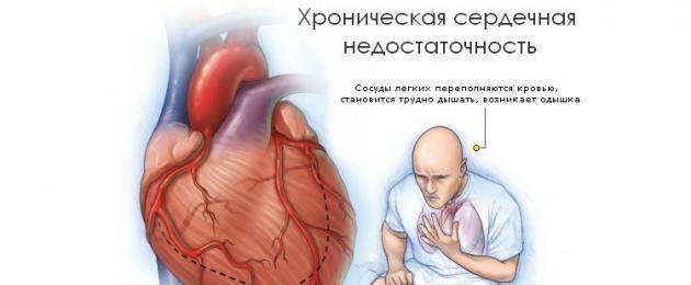Одышка при сердечной недостаточности — лечение народными средствами — заболевания сердца
