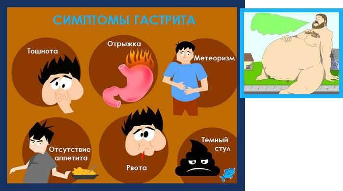 Отрыжка воздухом после еды и на голодный желудок: причины и лечение