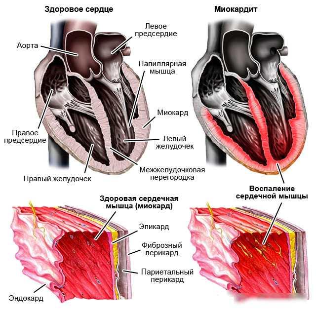 Ревматический миокардит: причины, симптомы, виды и формы, лечение и прогноз