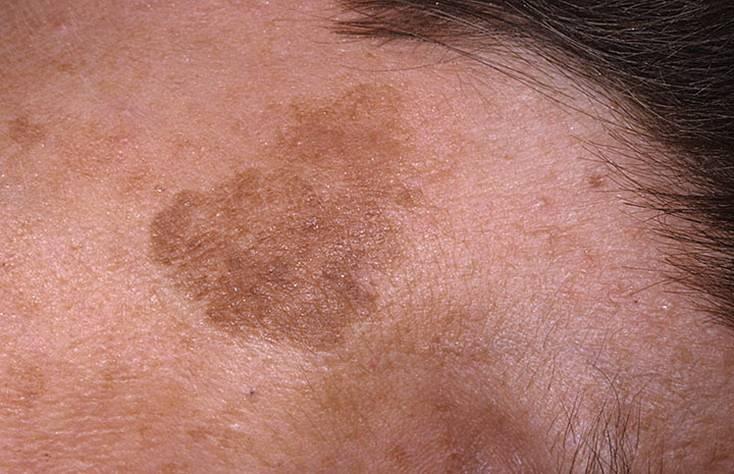 Шелушащиеся пятна на коже тела не чешутся, что делать