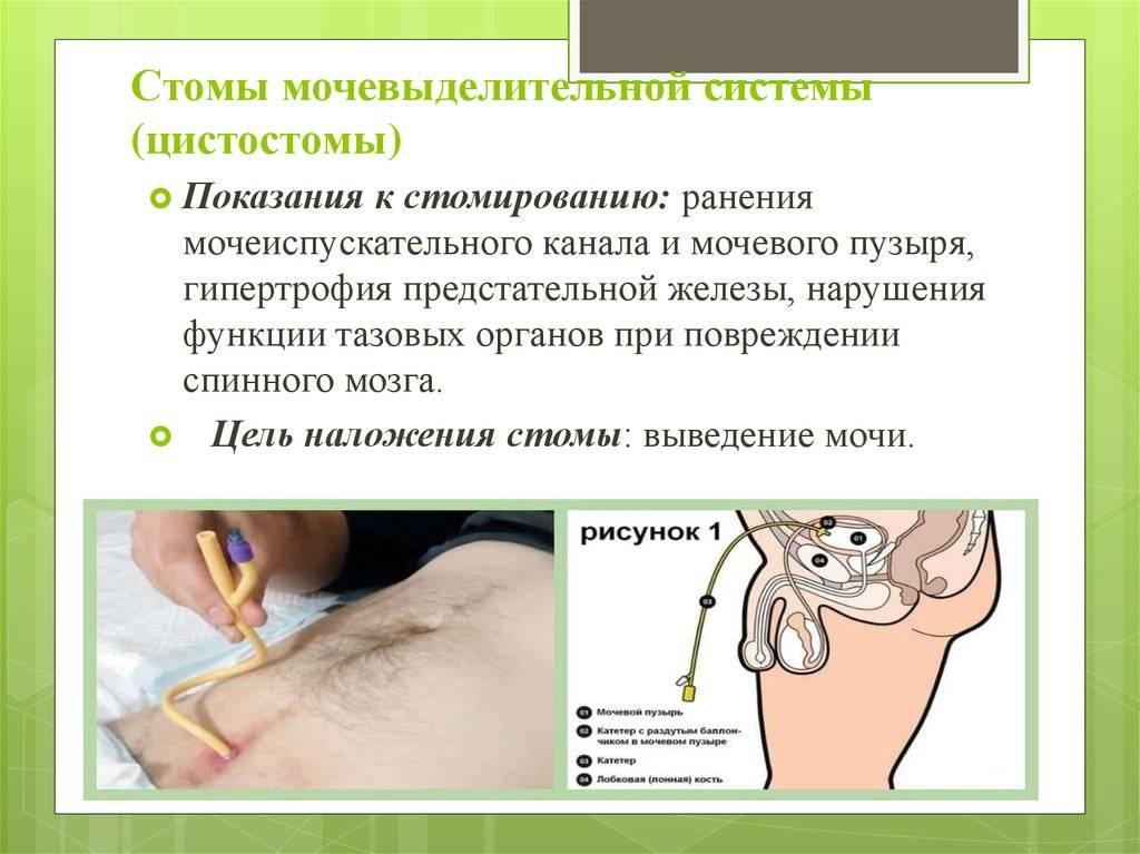 Цистостома мочевого пузыря у мужчин: показания, подготовка, установка, правила ухода, осложнения, рекомендации | pro-md.ru