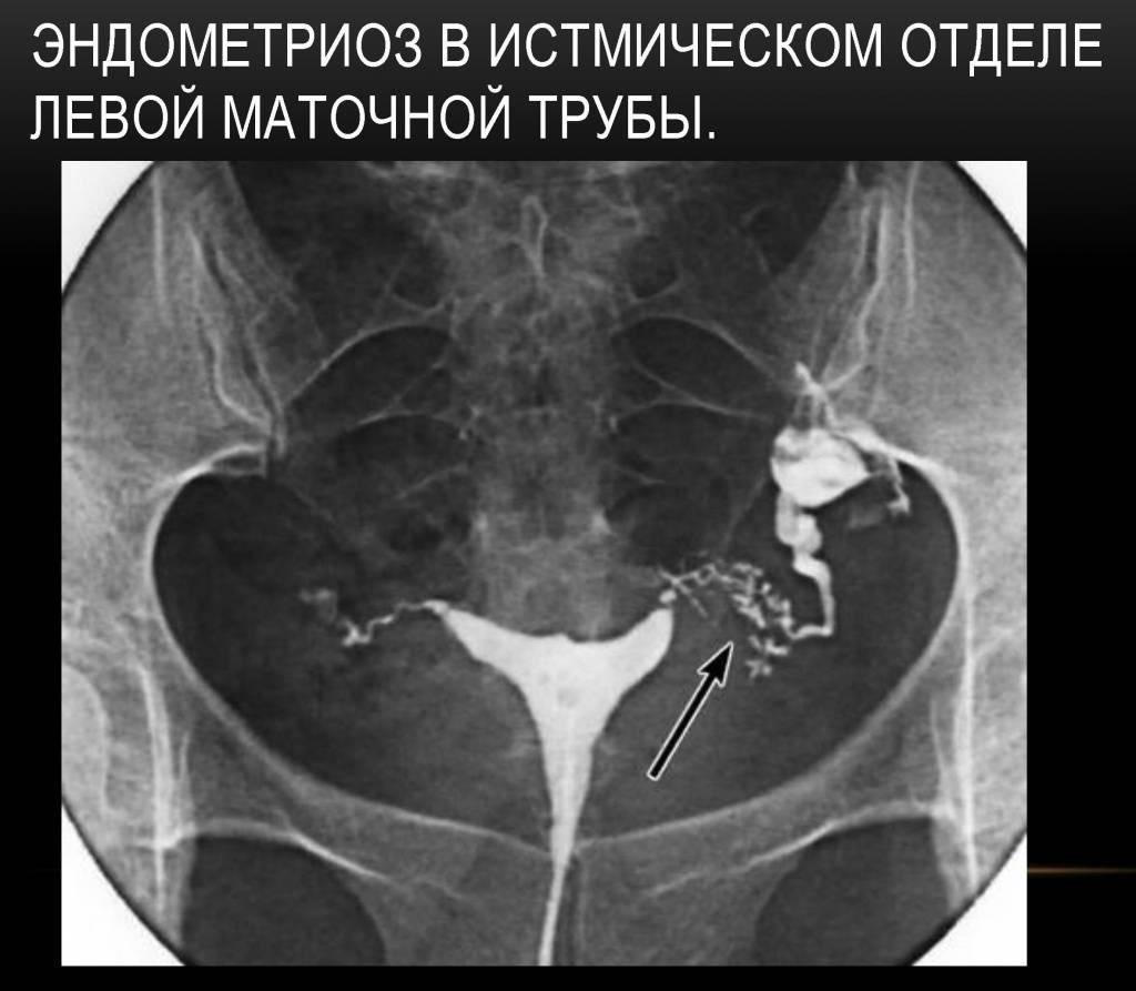 Воспаление маточных труб: что это такое. причины, симптомы и лечение воспаления маточных труб |             эко-блог