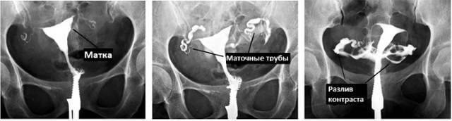 Непроходимости маточных труб лечение народными средствами: описание, профилактика, лечение