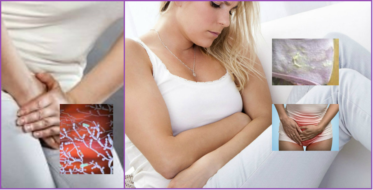 Узнайте, как лечить трихомониаз и какими симптомами он сопровождается