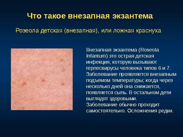 Детская розеола: какие опасности таит в себе это заболевание?