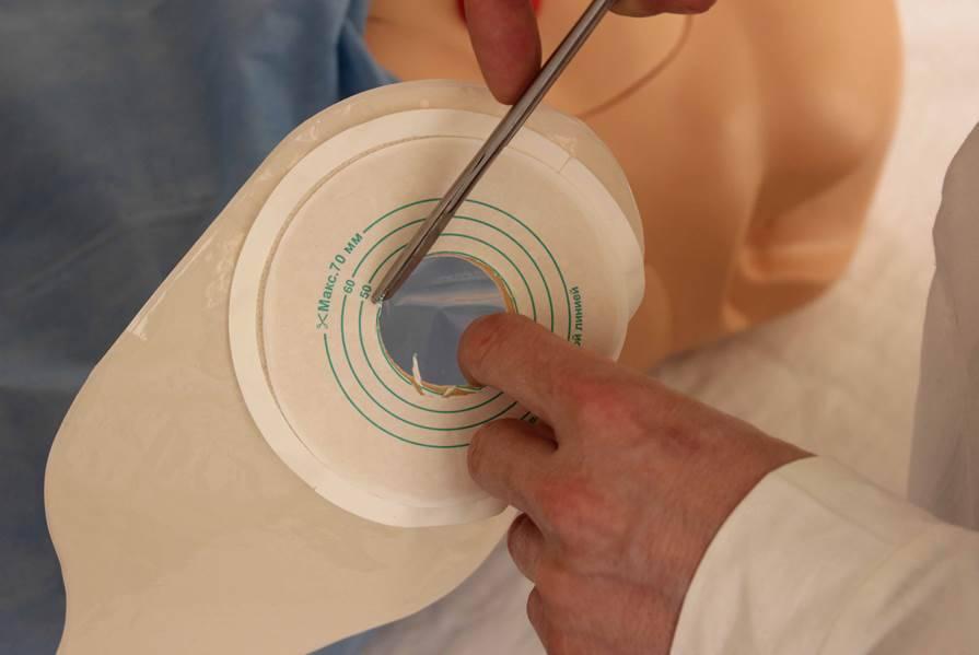 Пациентам с илеостомой