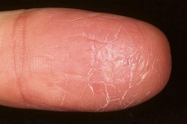 Экзема на ногах: недорогие, но эффективные мази для лечения